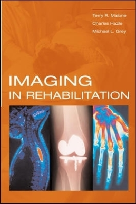 Imaging In Rehabilitation