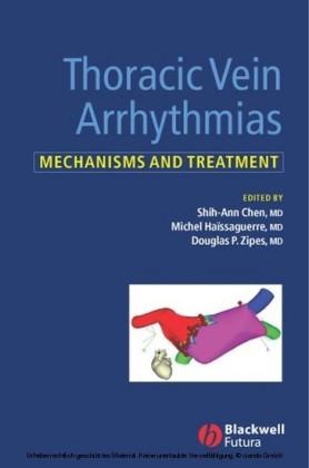 Thoracic Vein Arrhythmias