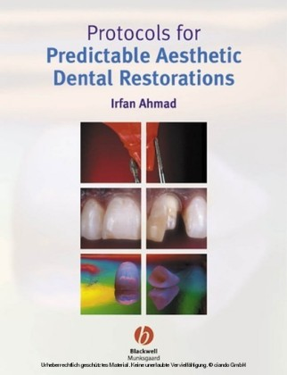 Protocols for Predictable Aesthetic Dental Restorations