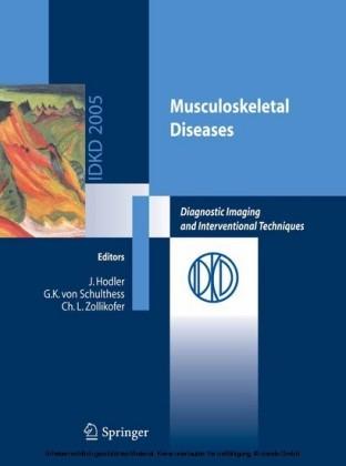 Musculoskeletal Diseases