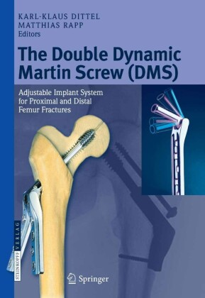 The Double Dynamic Martin Screw (DMS)