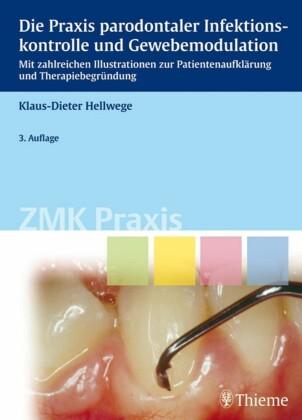 Die Praxis parodontaler Infektionskontrolle und Gewebemodulation