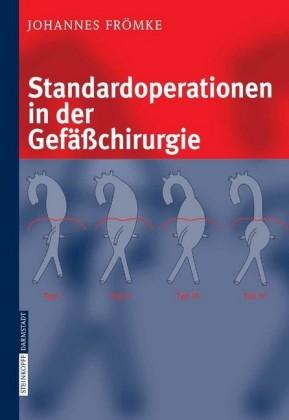 Standardoperationen in der Gefäßchirurgie