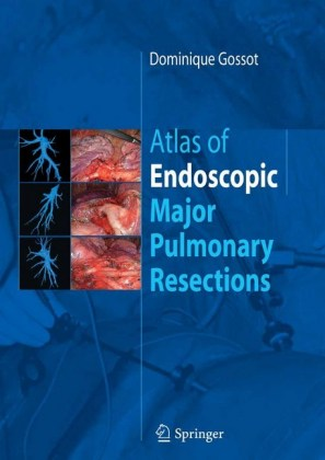Atlas of endoscopic major pulmonary resections