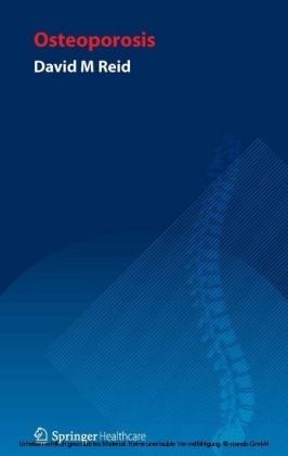 Handbook of Osteoporosis