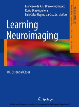 Learning Neuroimaging