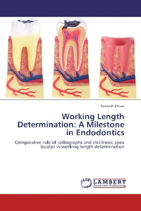 Working Length Determination: A Milestone in Endodontics