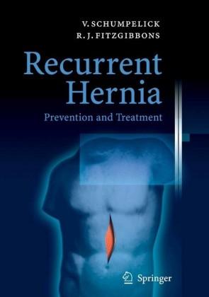 Recurrent Hernia
