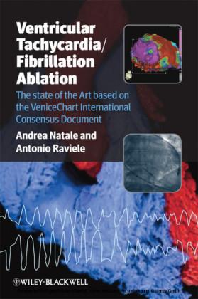 Ventricular Tachycardia / Fibrillation Ablation