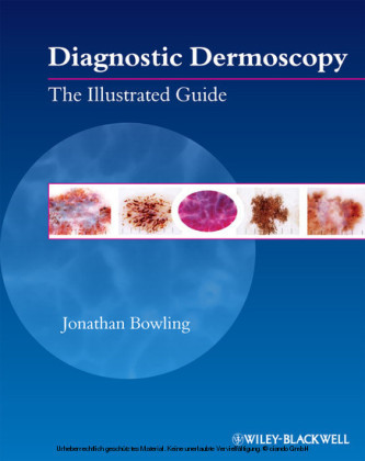 Diagnostic Dermoscopy