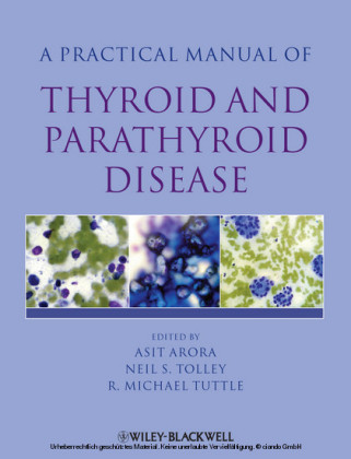 Practical Manual of Thyroid and Parathyroid Disease