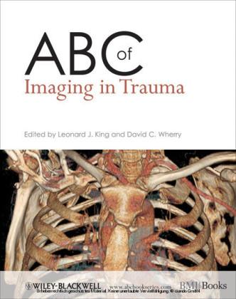 ABC of Imaging in Trauma