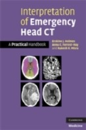 Interpretation of Emergency Head CT