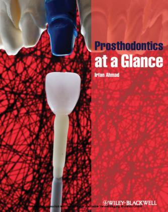 Prosthodontics at a Glance