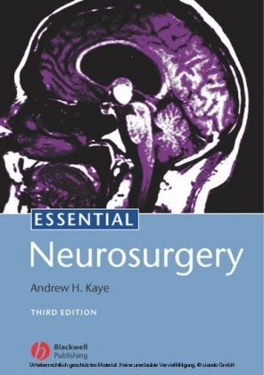 Essential Neurosurgery
