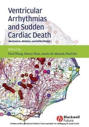 Ventricular Arrhythmias and Sudden Cardiac Death