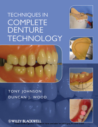 Techniques in Complete Denture Technology