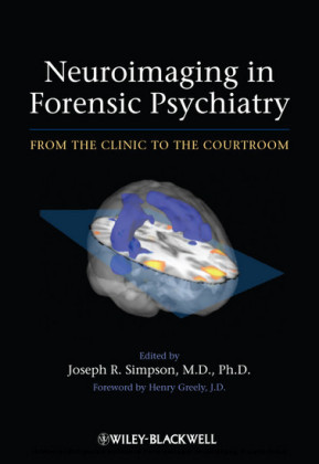 Neuroimaging in Forensic Psychiatry