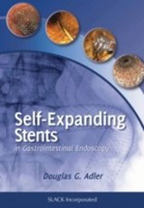 Self Expanding Stents in Gastroenterology