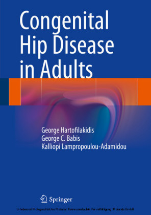 Congenital Hip Disease in Adults