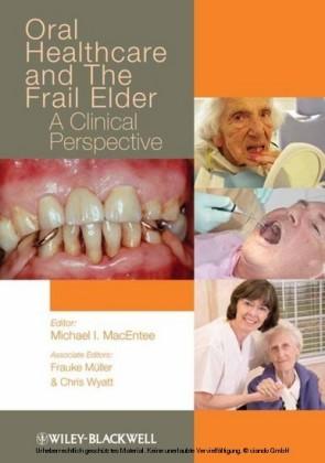 Oral Healthcare and the Frail Elder