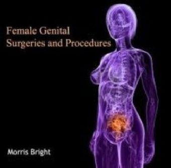 Female Genital Surgeries and Procedures