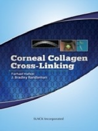 Corneal Collagen Cross-Linking