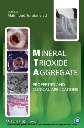 Mineral Trioxide Aggregate