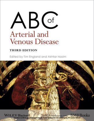 ABC of Arterial and Venous Disease