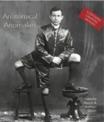 Anatomical Anomalies