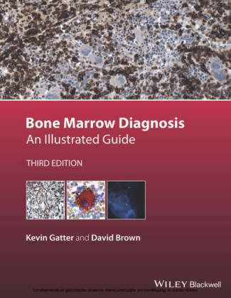 Bone Marrow Diagnosis