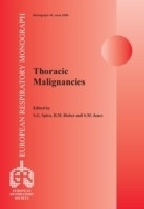 Thoracic Malignancies