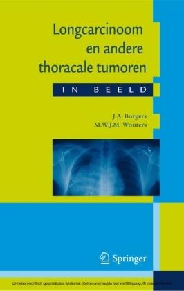 Longcarcinoom en andere thoracale tumoren in beeld