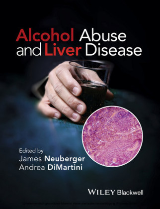Alcohol Abuse and Liver Disease