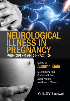 Neurological Illness in Pregnancy