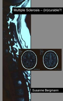Multiple Sclerosis - (in)curable?!