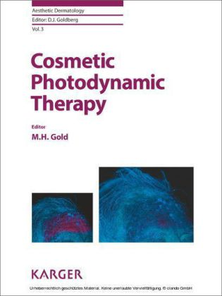Cosmetic Photodynamic Therapy