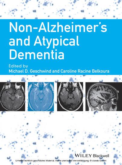 Non-Alzheimer's and Atypical Dementia (eBook) | ALDI life