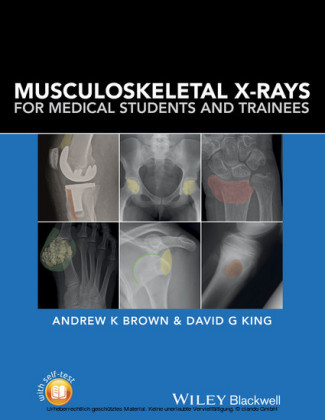 Musculoskeletal X-Rays for Medical Students and Trainees