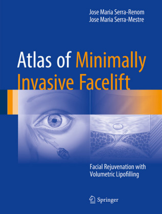 Atlas of Minimally Invasive Facelift
