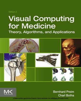 Visual Computing for Medicine
