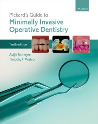 Pickards Guide to Minimally Invasive Operative Dentistry
