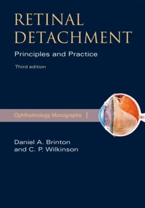 Retinal Detachment: Priniciples and Practice