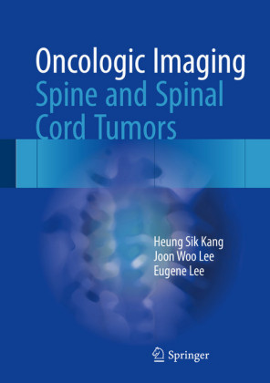 Oncologic Imaging: Spine and Spinal Cord Tumors