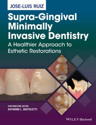 Supra-Gingival Minimally Invasive Dentistry