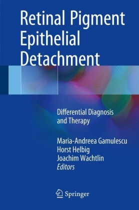 Retinal Pigment Epithelial Detachment