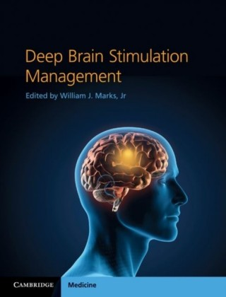 Deep Brain Stimulation Management