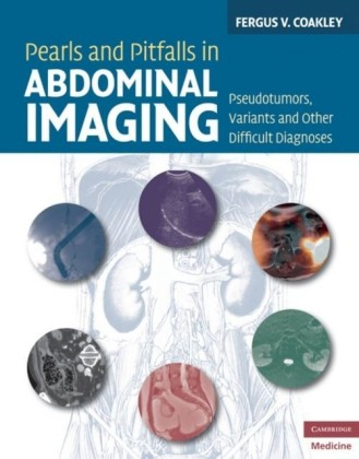 Pearls and Pitfalls in Abdominal Imaging