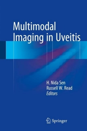 Multimodal Imaging in Uveitis