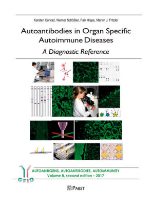 Autoantibodies in Organ Specific Autoimmune Diseases - A Diagnostic Reference